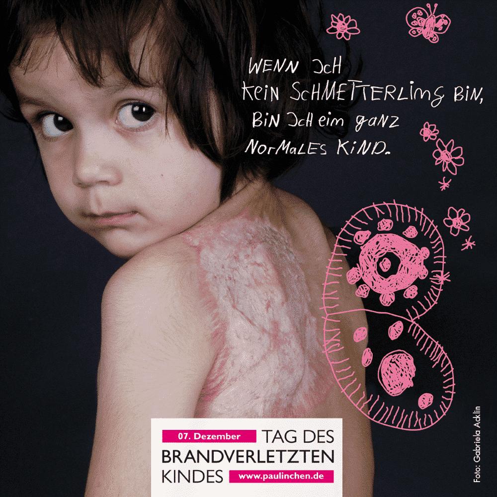 Am 7. Dezember 2020 ist Tag des brandverletzten Kindes. Die Initiative Paulinchen - Initiative für brandverletzte Kinder e. V. möchte an diesem Tag auf die Gefahren durch Verbrennungs- oder Verbrühungsunfälle für Kinder hinweisen.